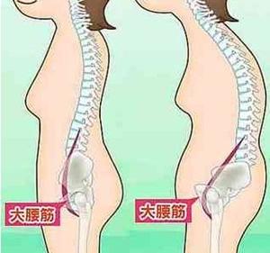 腸腰筋 ポッコリお腹 原因