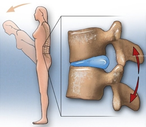 腰椎屈曲 椎間板
