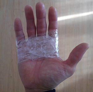 手のひら マメ 治す 方法